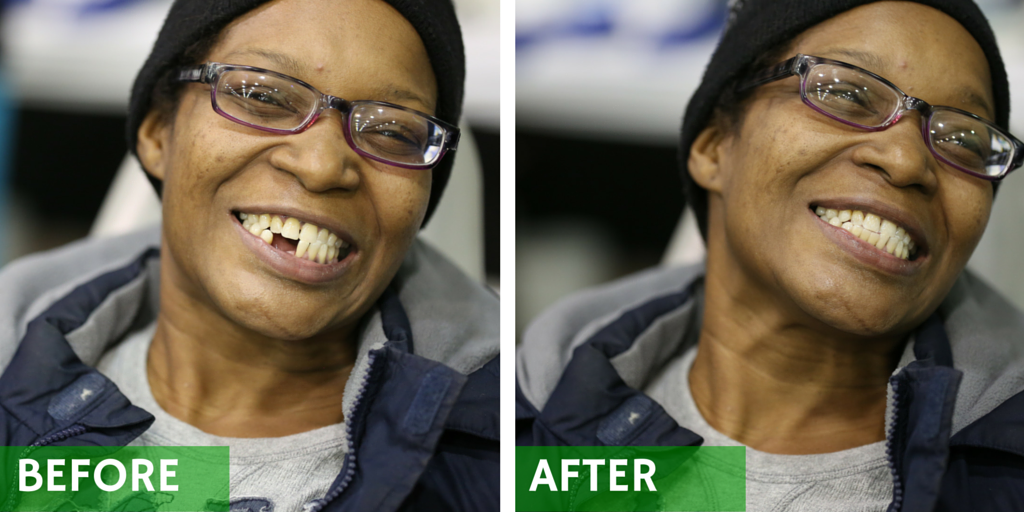 Before and after pictures of a woman's transformed smile